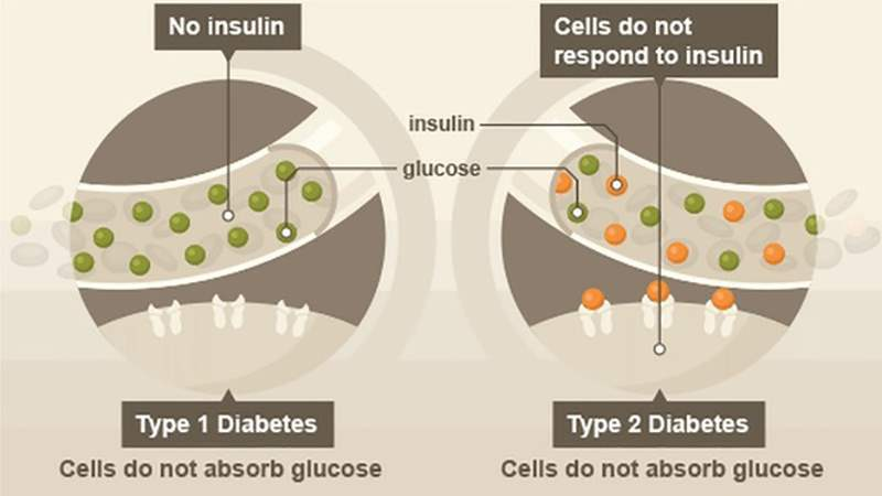 A picture that shows the difference between the two types of diabetes